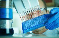 Nifty- un test de diagnostic prenatal fara riscuri, cu peste 99,9% rata de detectie a sindoamelor genetice
