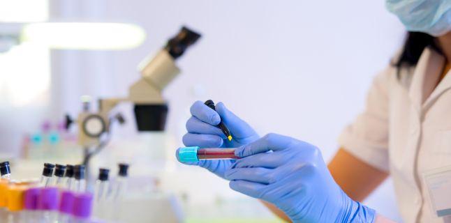 Proteina C Reactiva (PCR)