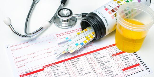 Analize utile pentru afectiunile sistemului urinar