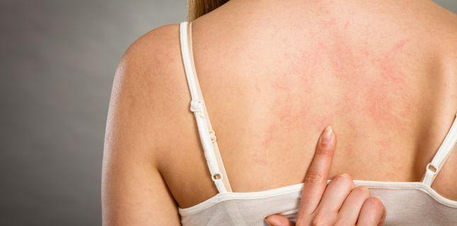 Pitiriazis Versicolor sau Tinea Versicolor - cauze, simptome, tratament