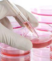 Transplant alogen de celule stem