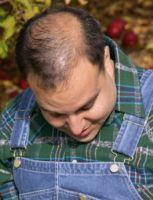 Transplantul de par (graftingul) si reducerea scalpului