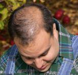 Transplantul de par (graftingul) si reducerea scal...