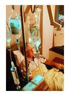 noduli glanda tiroida simptome
