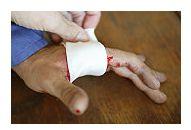 Tratamentul plagilor taiate sau sfasiate