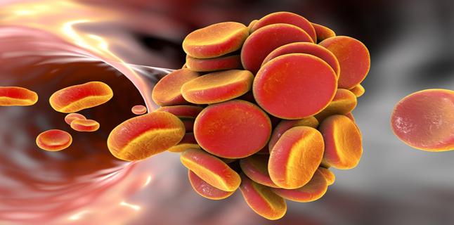 Totul despre tromboembolismul venos (TEV)