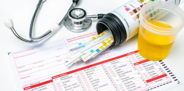 Posibilele cauze ale urinarilor frecvente