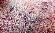 Tratamentul varicelor, intre dezamagire si speranta