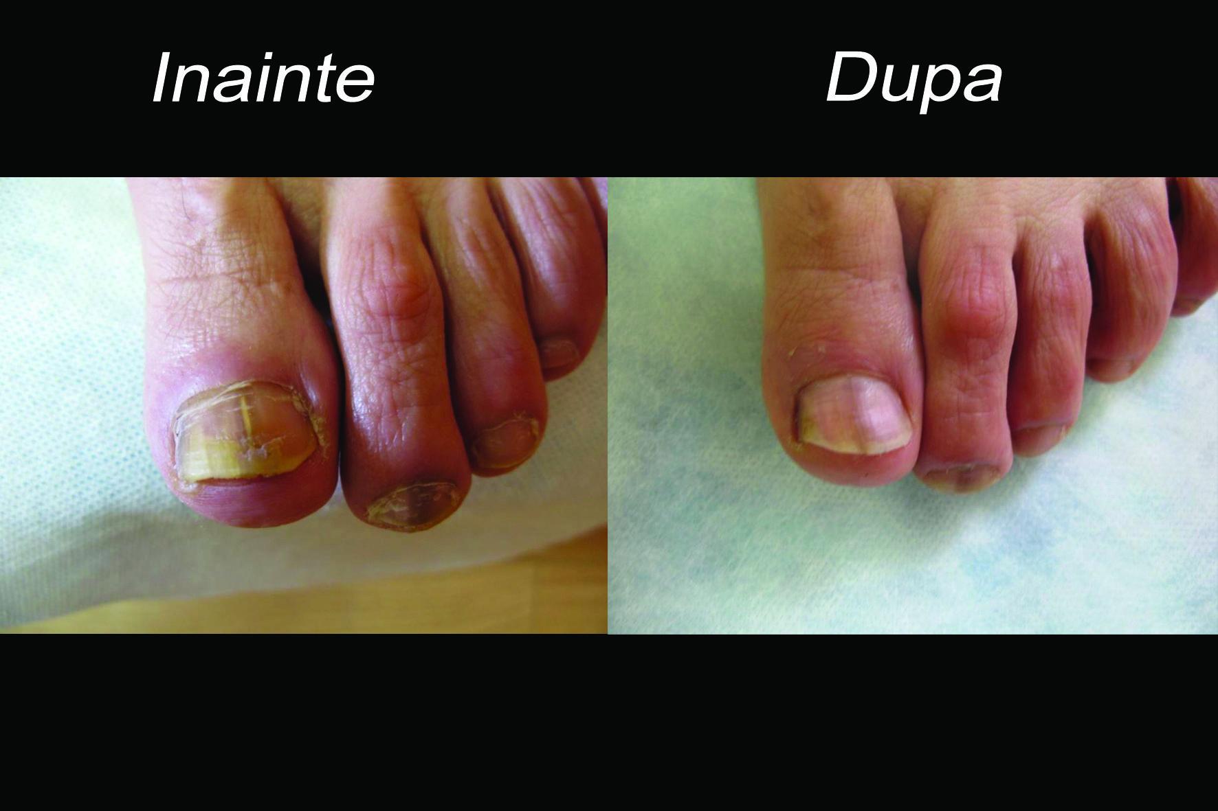 Onicomicoza - infectia fungica a unghiei