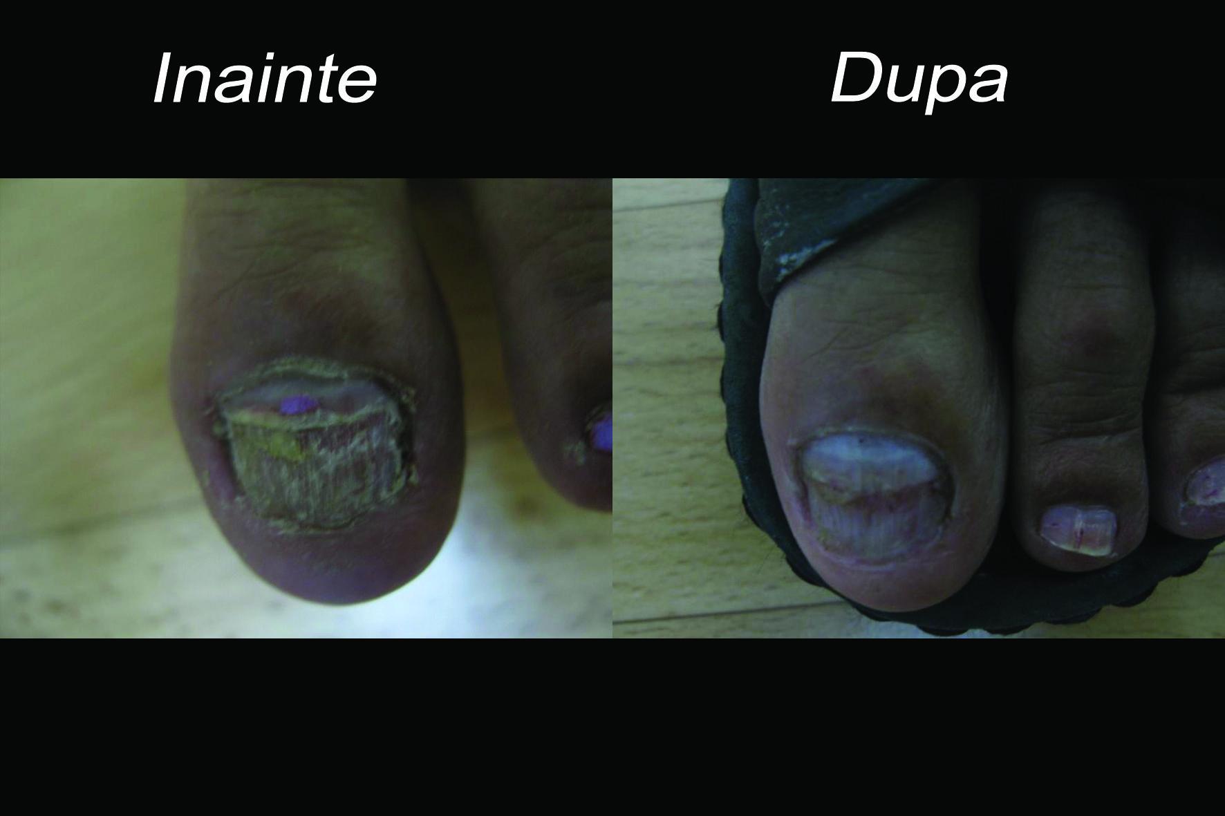 Micoza unghiei tratament