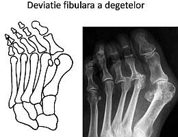 marius uscatu, piciorul reumatoid