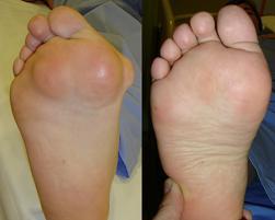 marius uscatu, picior reumatoid