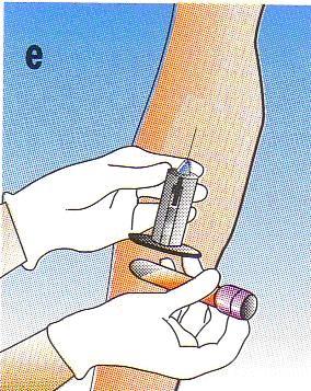Pentru a asigura optima omogenizare a sangelui cu anticoagulantul, efectuati 8-10 miscari de inversiune a tubului.